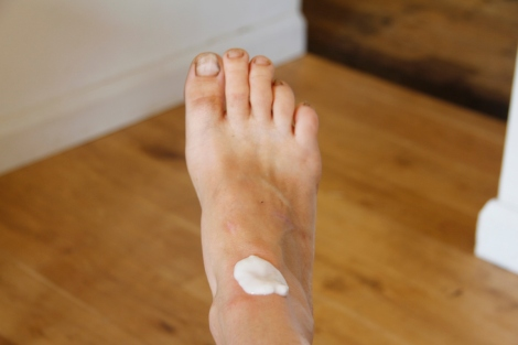 bee sting foot